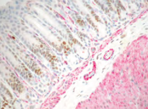 Triple and Double IHC Staining kits